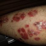 Aloe Vera gegen Psoriasis